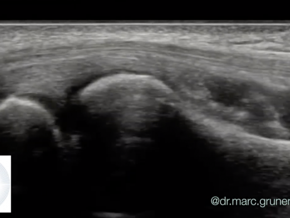 tennis elbow ultrasound